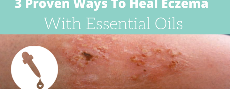 essential oils for eczema